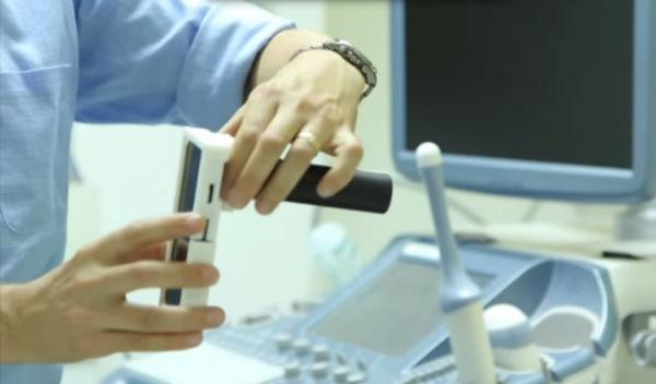 MobileOCT برای تشخیص سرطان رحم مورد استفاده قرار می گیرد