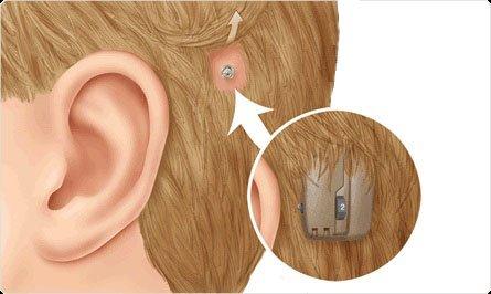 implant ear