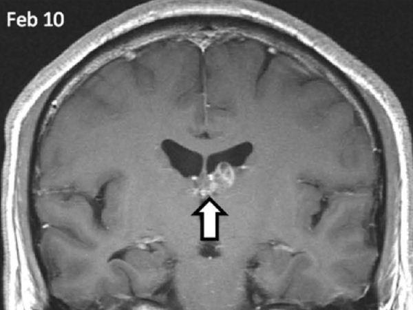 brain-worm-feb-10