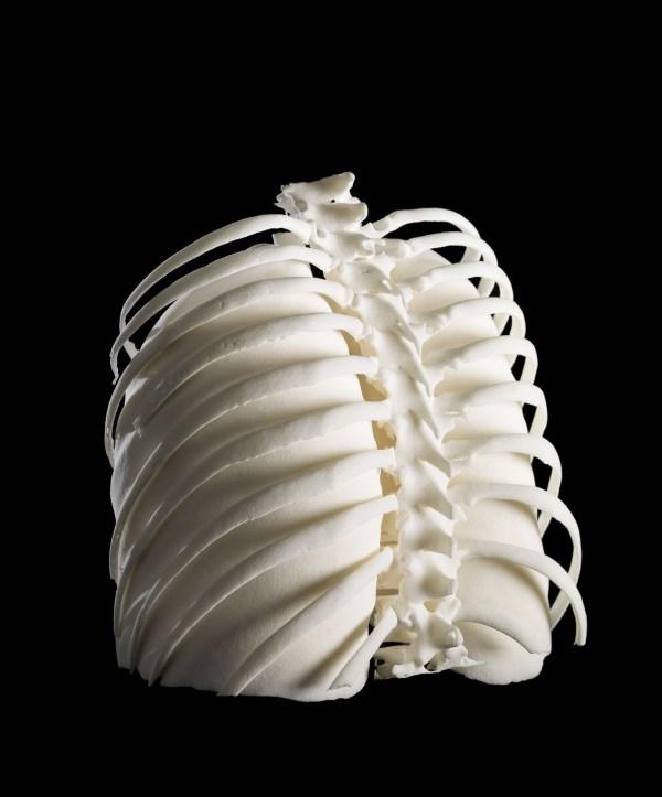 مدل سه بعدی پرینت شده از قفسه سینه زنی که مبتلا به سرطان بوده است