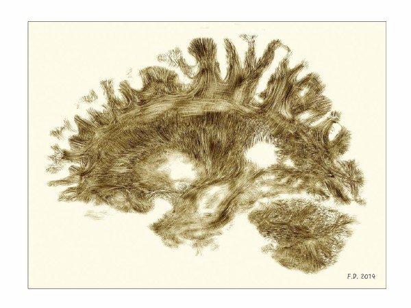 تصویری با سبک نقاشی های قرن نوزدهمی عصب شناس فرانسوی،Joseph Jules Dejerine. این عکس MRI مغز یک انسان کاملاً سالم را نمایش می دهد.