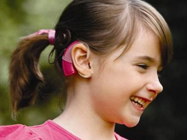 Smiling_girl_cochlear_implant-500