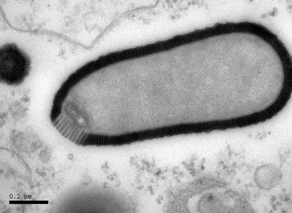 sn-GiantVirus
