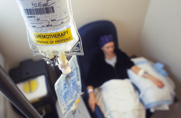 ^BMODEL RELEASED. Cancer chemotherapy.^b Female patient receiving anticancer drugs from an intravenous drip bag. This continuously supplies the patient with a controlled amount of drugs that target cancer cells. The drugs target all rapidly dividing cells, which causes them to have a range of side effects, including hair loss. Cancer is a disease caused by the uncontrolled replication of abnormal cells, which can invade and destroy healthy tissue. The drugs in use here are ^Icytoxan^i and ^Iadriamycin^i. Photographed at Massachusetts General Hospital, USA.