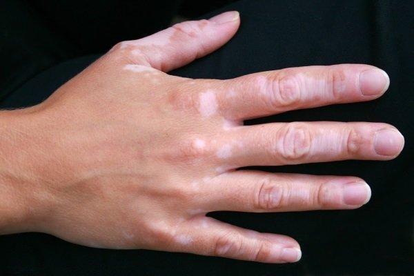 Vitiligo-of-Hands