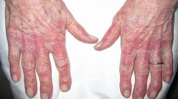 Lupus-Rash-on-Hands