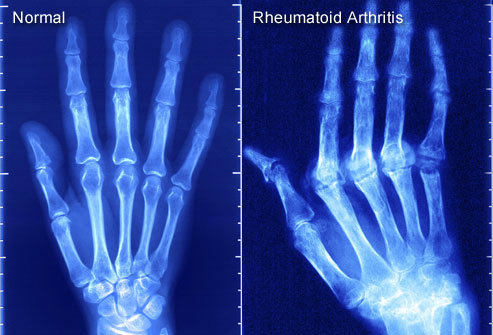 PRinc_rm_x-ray_of_rheumatoid_arthritis-w600