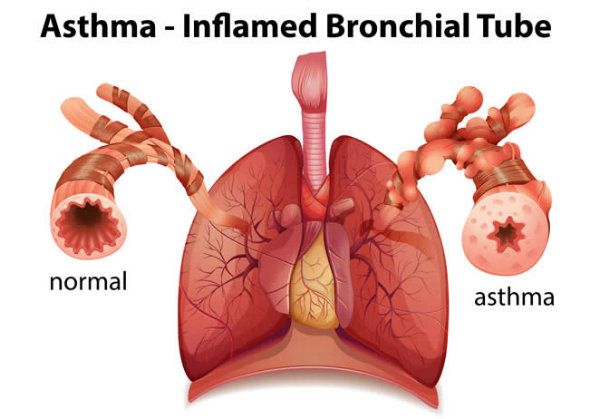 asthma-inflamed-tube-w600