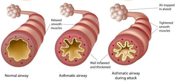 asthmatic-airway-Shutterstock-w600