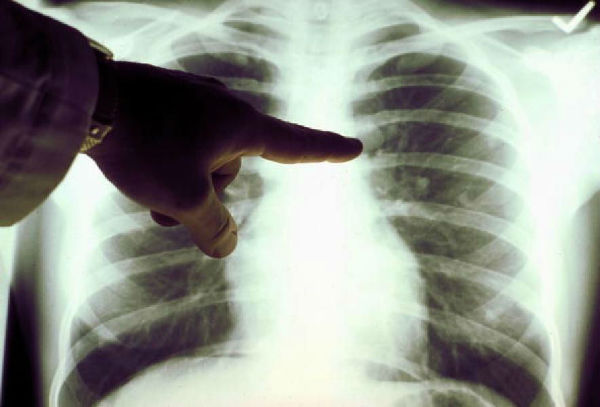 lung-cancer1