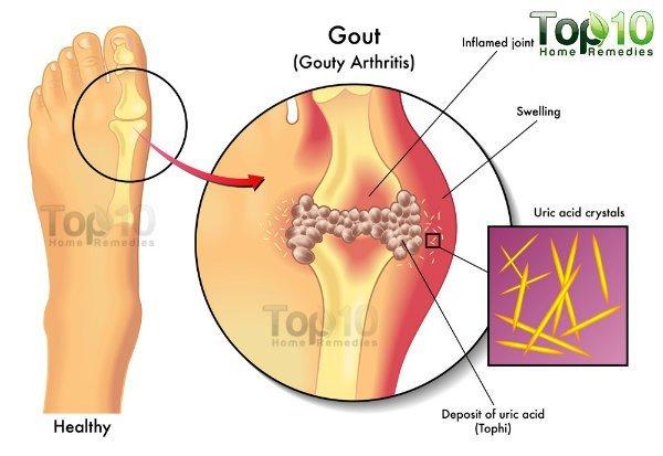 gout-diag-opt-w600