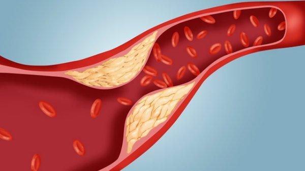 gty_atherosclerosis_cholesterol_plaque_artery_ll_111114_wmain-w600