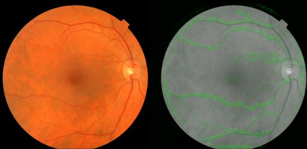 تشخیص بیماری های قلبی اسکن چشم هوش مصنوعی گوگل