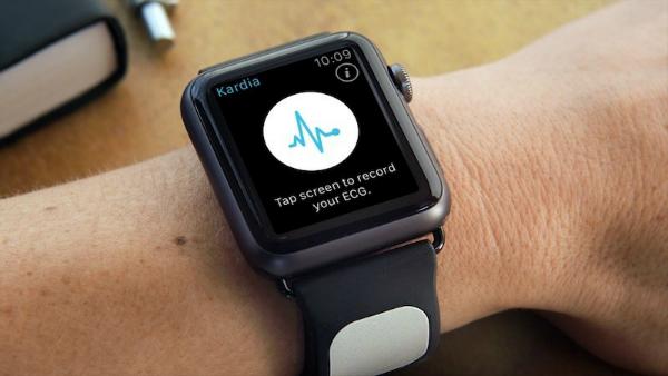 Kardia Band apple watch 800x450 - مدیر مالی فیت بیت: اپل واچ دیگر مردم را هیجانزده نمیکند