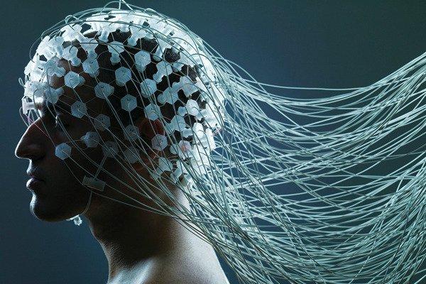Brain Computer Interface هرآنچه باید درباره Neuralink، پروژه رابط مغزی کامپیوتری ایلان ماسک بدانید اخبار IT