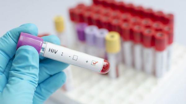 نتیجه تصویری برای دیجیاتو HIV