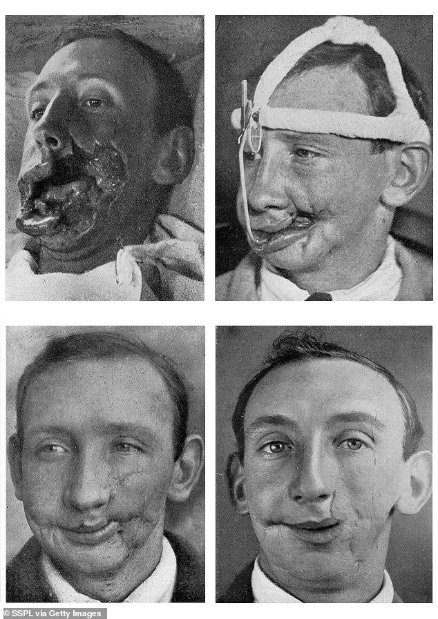 عمل جراحی زیبایی