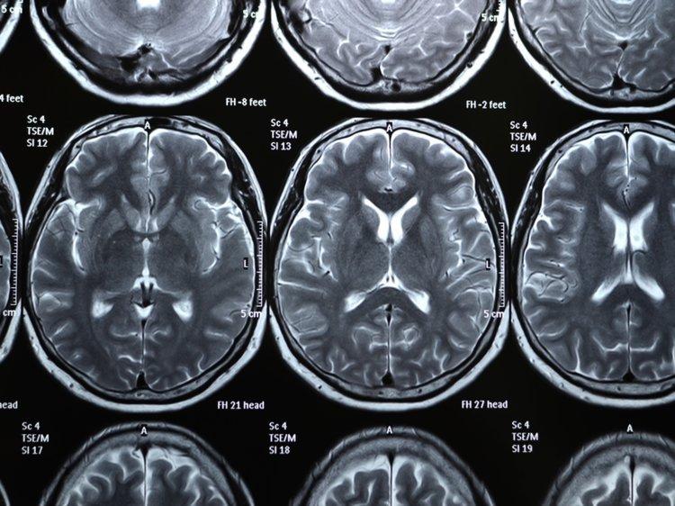 اسکن مغز انسان