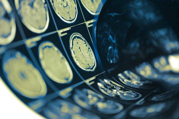 متابولیسم مغز