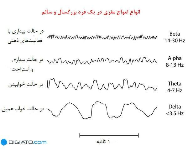 انواع امواج مغزی در یک فرد بزرگسال و سالم