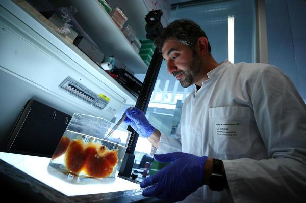 چاپ سه بعدی اندام های بدن