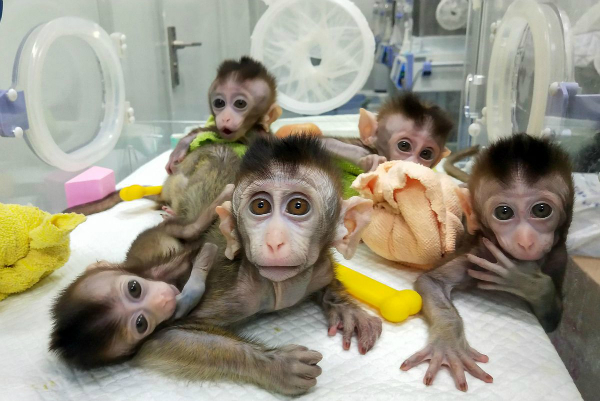 ژن های مغز انسان