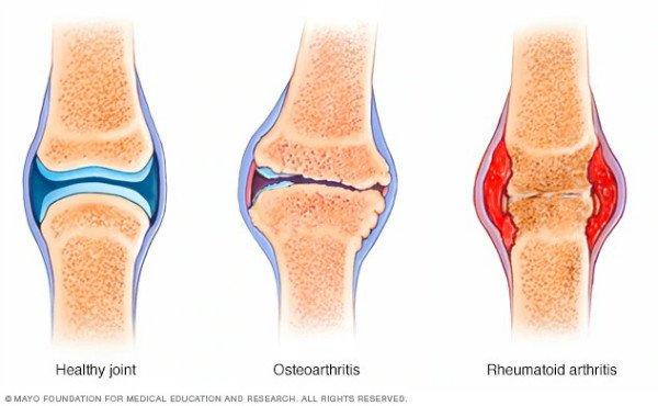 https://newatlas.com/rheumatoid-arthritis-filgotinib-jak-inhibitor-human-trial/60728/