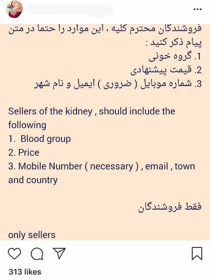 خرید و فروش اعضای بدن