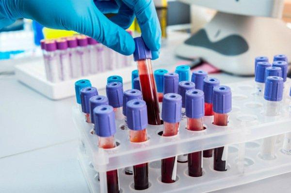 تشخیص نشانه های سرطان
