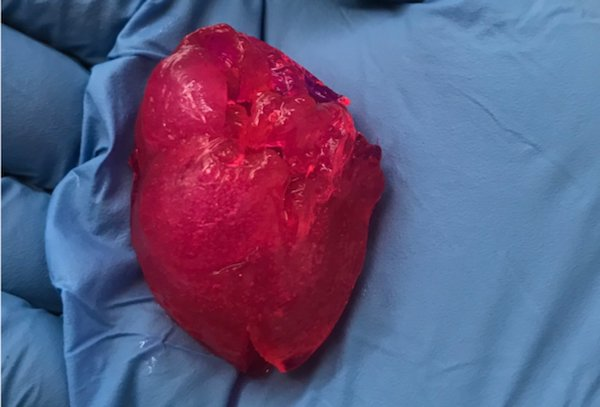 پرینت سه بعدی قلب