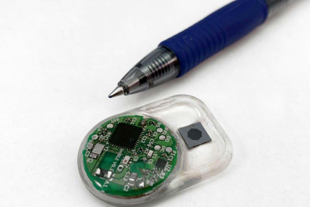 اختراع ایمپلنت توزیع دارویی که با بلوتوث کنترل میشود