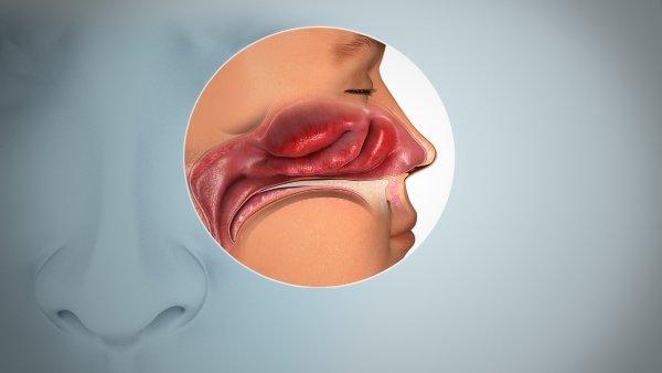 Anosmia هر آنچه تاکنون از تأثیر ویروس کرونا بر حس بویایی و چشایی میدانیم اخبار IT