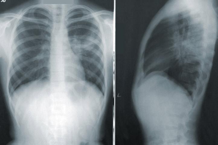 توسعه ابزاری که با بررسی رادیوگرافی قفسه سینه بیماری کووید ۱۹ را تشخیص می دهد
