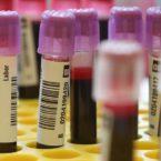 انقلابی در تشخیص سرطان؛ آزمایش خونی که ۴ سال زودتر بیماری را شناسایی میکند