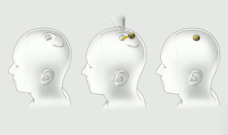 Screenshot 2020 08 29 Elon Musk shows Neuralink brain link implant working in a pig ایلان ماسک سرانجام از چیپ مغزی نورالینک رونمایی کرد [تماشا کنید] اخبار IT