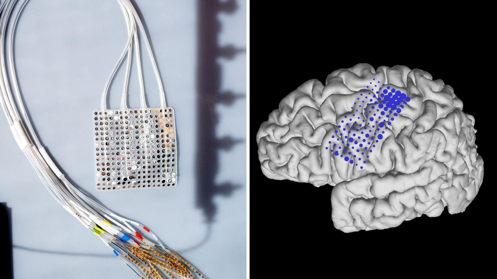 skynews uscf brain implant 5089743 توسعه اولین پروتز مغزی بینیاز از کالیبره سازی اخبار IT