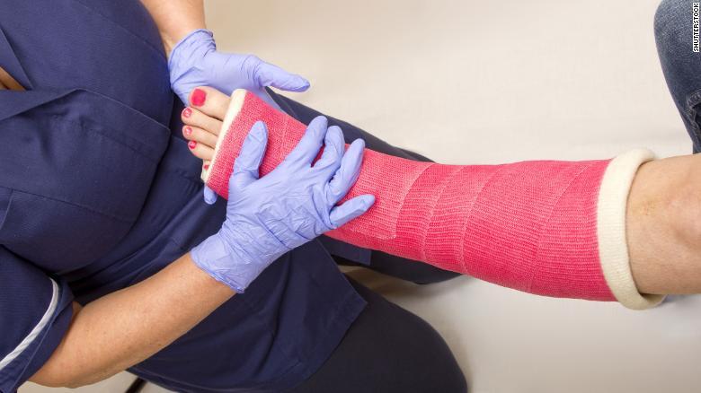 201121135642 broken leg stock exlarge 169 مطالعات جدید: وگانها احتمالا بیشتر در معرض شکستگی استخوان قرار دارند اخبار IT