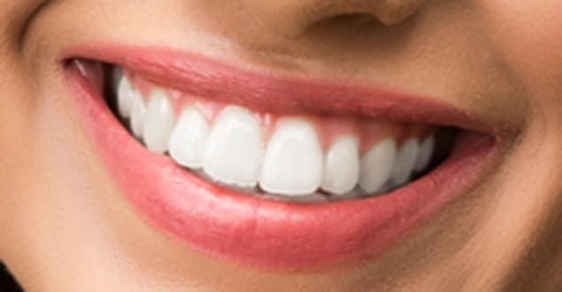 teeth color removed photoshop چگونه در فتوشاپ دندانها را سفید و درخشنده کنیم؟ اخبار IT