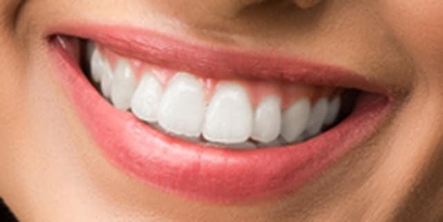 whiten teeth cleanup after چگونه در فتوشاپ دندانها را سفید و درخشنده کنیم؟ اخبار IT