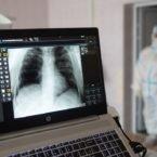 بیش از ۴۵ میلیون تصویر پزشکی از ۶۷ کشور دنیا لو رفت