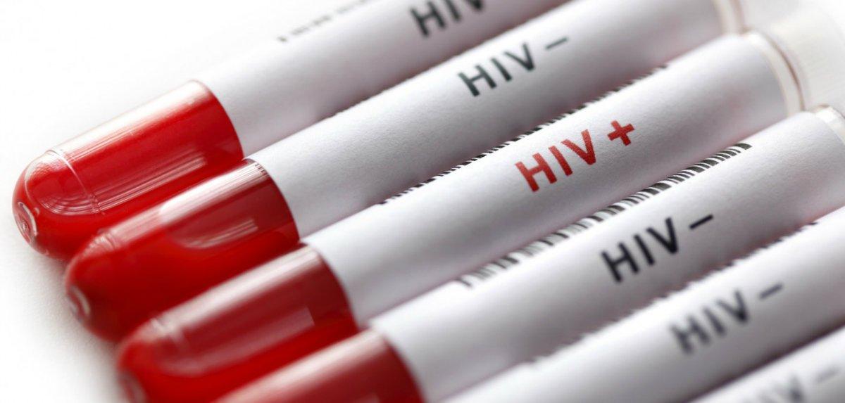 103264 HIV iStock 23193685 LARGE.jpg 08e9829e 3a31 4e1c b9d1 5bd3fa8d9715 x2 w1200 بزرگترین شکستهای دنیای تکنولوژی در سال ۲۰۲۰ اخبار IT