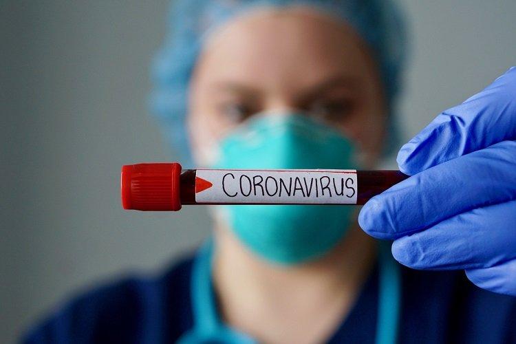 COVID 19 and food This virus is sensitive to cooking temperatures تغییر دمای آب و هوا احتمالا تاثیری روی انتقال ویروس کووید ۱۹ ندارد اخبار IT