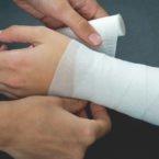تحریک الکتریکی رگها میتواند به ترمیم سریعتر زخمها کمک کند