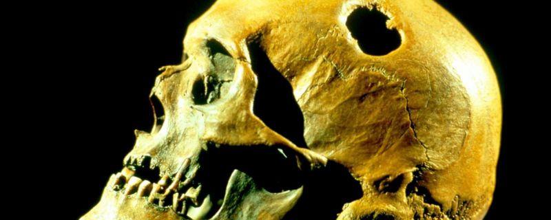 راز جمجمههای سوراخ شده باستانی چیست؟