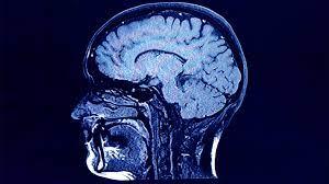 ویروس کرونا میتواند در بلندمدت حجم ماده خاکستری مغز را کاهش دهد