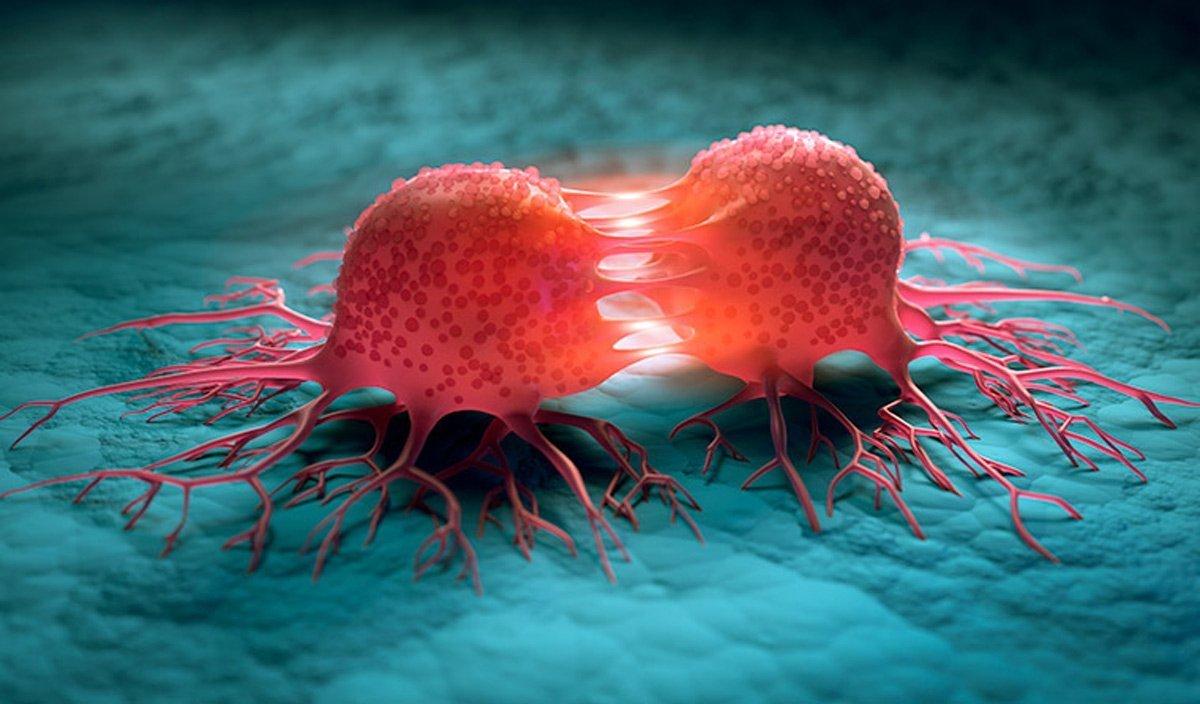توسعه درمان جدیدی که سرطان پروستات پیشرفته را هدف قرار میدهد