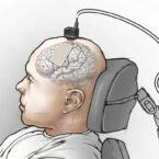 ایمپلنت مغزی جدید افکار مردی با ناتوانی حرکتی را به کلمات تبدیل کرد [تماشا کنید]