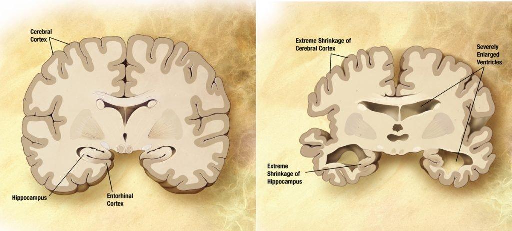 محققان از «نشت» پروتئینهایی در مغز خبر میدهند که منجر به آلزایمر میشود