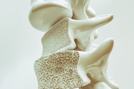محققان از کاهش خطر ابتلا به دیابت نوع ۲ با مصرف داروی پوکی استخوان خبر میدهند