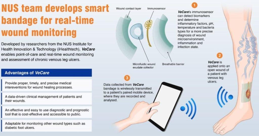 محققان سنگاپوری بانداژ هوشمندی با قابلیت ارزیابی زخمها توسعه دادهاند
